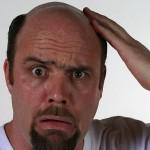 アナボリックステロイドの副作用「ハゲ」を防止する方法