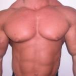 アナボリックステロイドの副作用「女性化乳房」を防ぐ方法