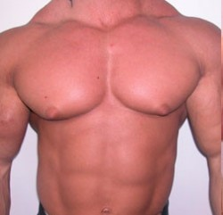 Side effects of steroids 250x241